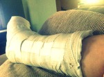 The splint has to stay on for two weeks before getting a plaster cast.